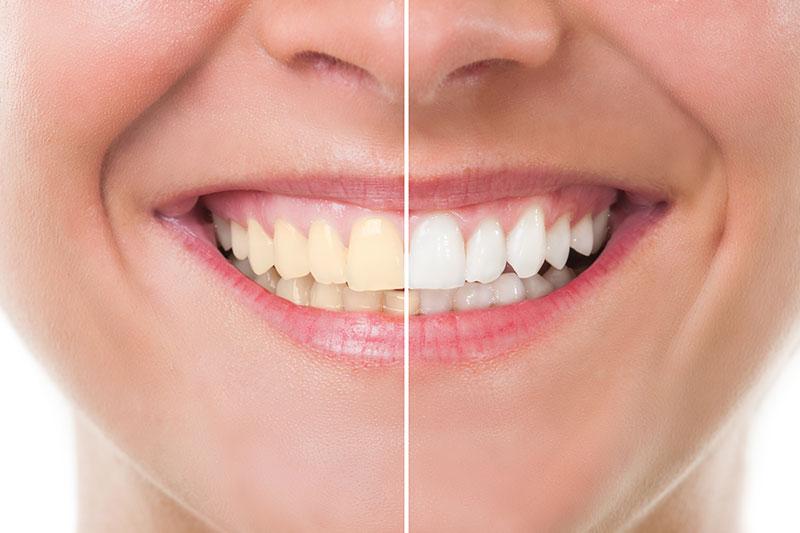 Teeth Whitening - PC Family Dentistry, Diamond Bar Dentist